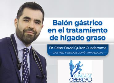 Balón gástrico en el tratamiento del hígado graso